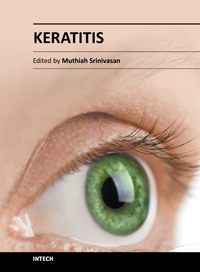 Keratitis Symptoms