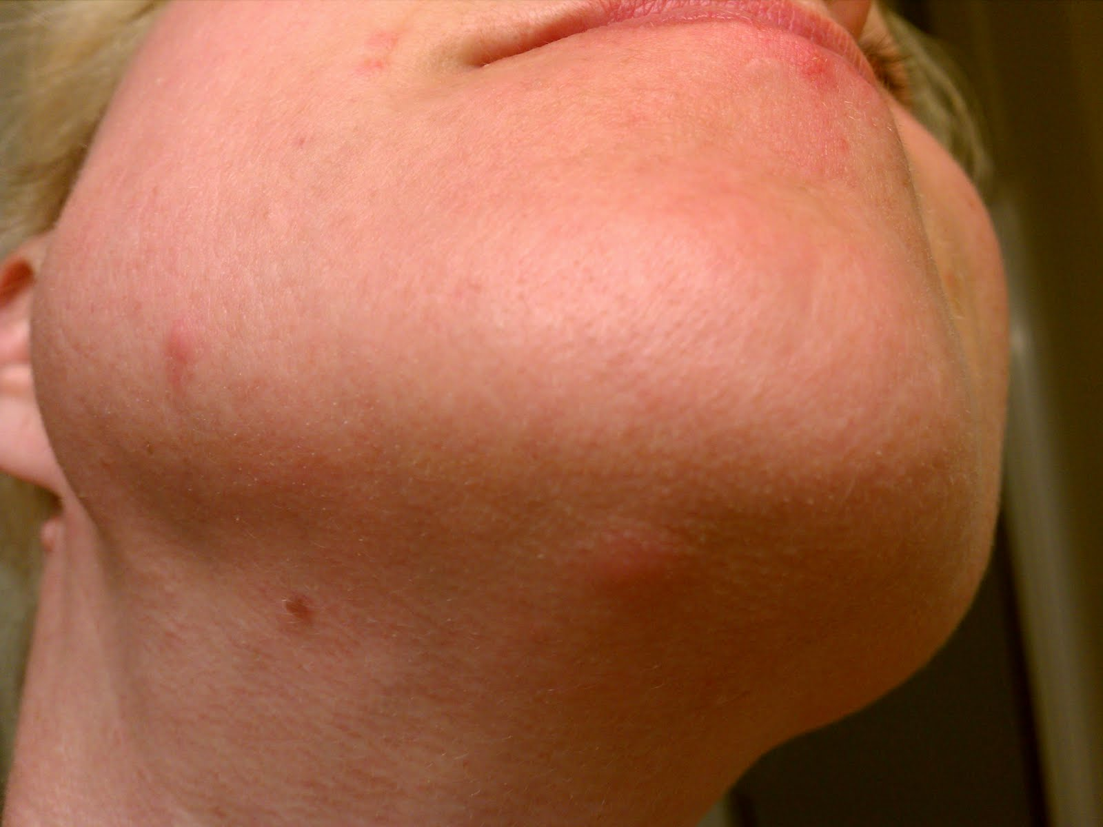 Red Bumps On My Face Dorothee Padraig South West Skin
