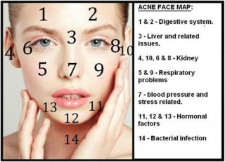 Cause of Acne on Face