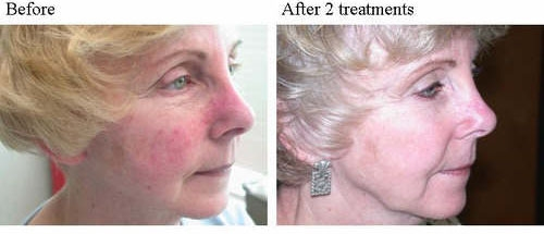 Pdt Treatment For Skin Cancer Dorothee Padraig South