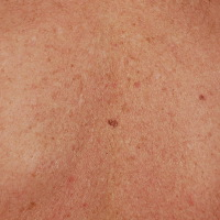Pictures Early Melanoma