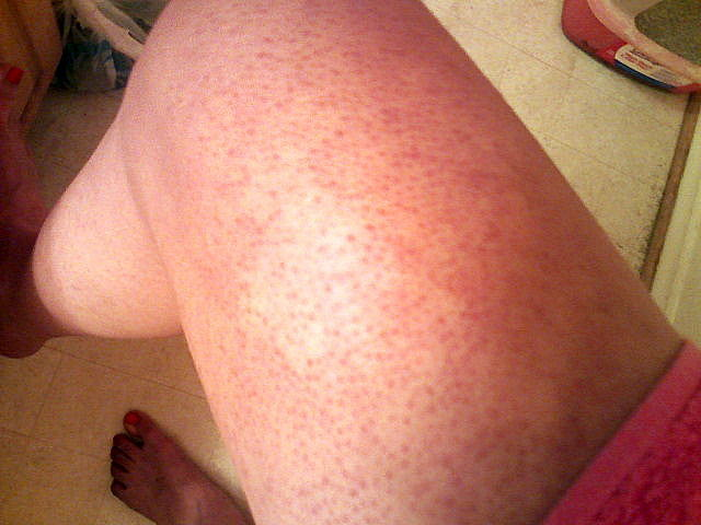 Keratosis On Legs Treatment Dorothee Padraig South West