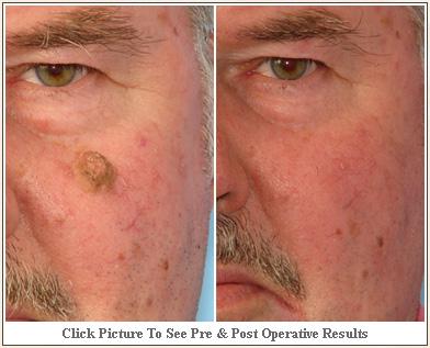 Natural Skin Tan Removal Remedies