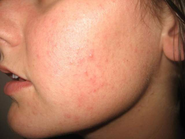 reddish bumps on face