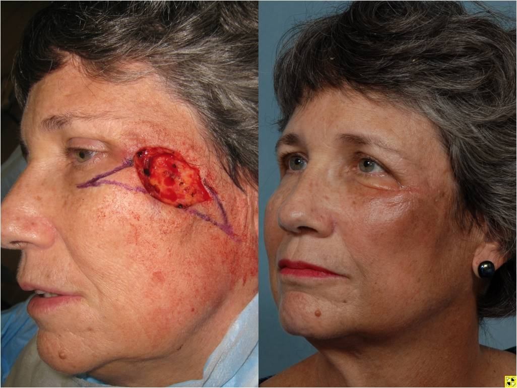 treatments for facial skin cancer