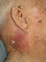 Squamous Cell Carcinoma of the Neck