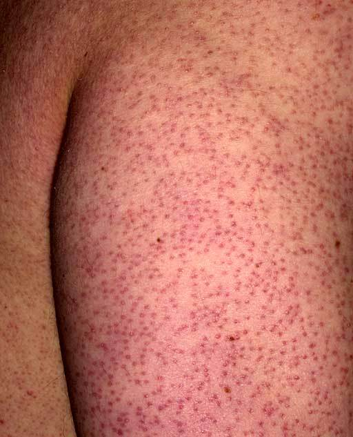 Keratosis Pilaris Redness Dorothee Padraig South West