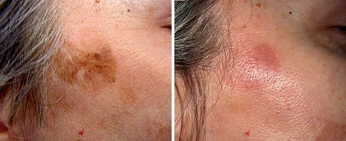 Best Treatment for Actinic Keratosis