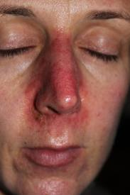 Redness Around the Nose