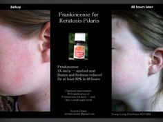 Essential Oils for Keratosis Pilaris