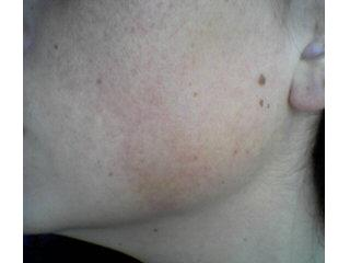 Keratosis on the Face