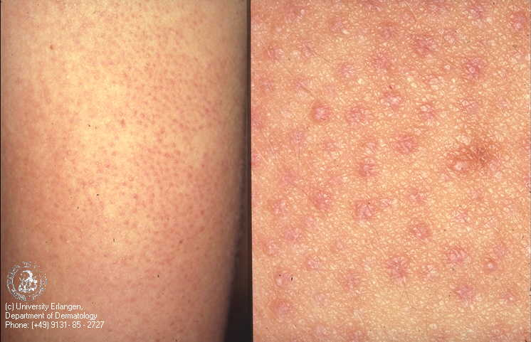 Dry white patches on thighs