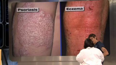 Natural Products For Psoriasis