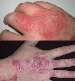 difference in eczema and psoriasis