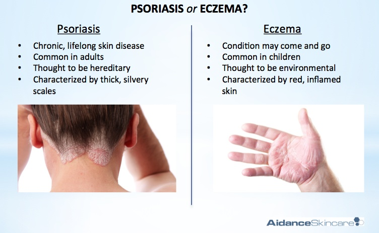 dry skin psoriasis pictures