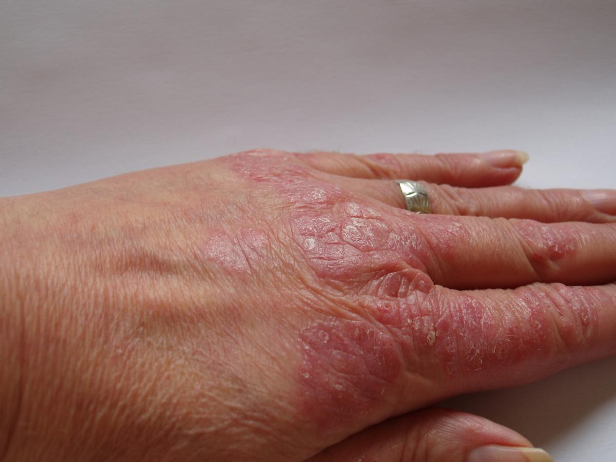 8 Psoriasis Home Remedies pictures