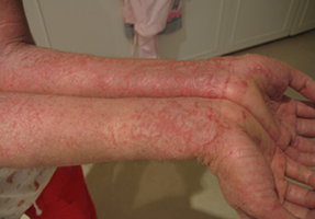 Dry Skin Eczema Home Treatment