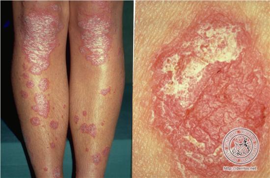 Psoriasis Vulgaris | Dorothee Padraig South West Skin