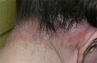 How to Treat Psoriasis of the Scalp