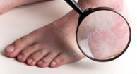 New Pill for Psoriasis