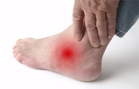 Psoriatic Arthritis Foot Pain