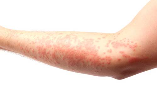 Allergy Skin Rash