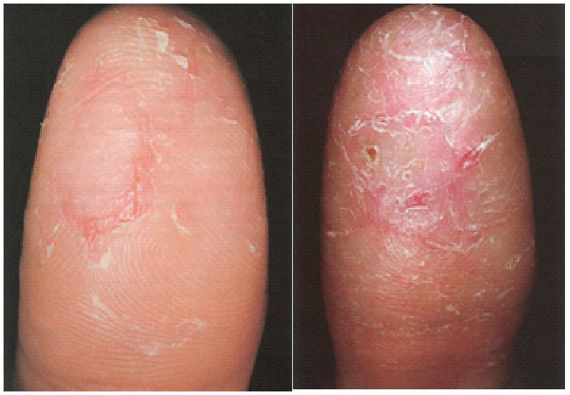 Finger Eczema Causes Dorothee Padraig South West Skin