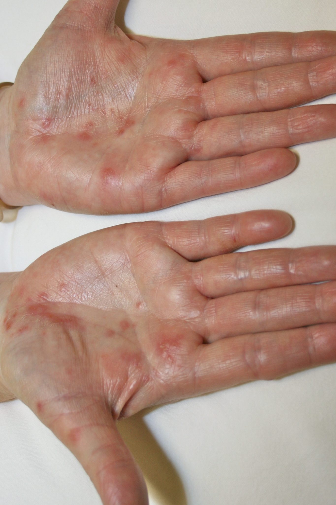 Types Of Eczema On Hands And Feet Dorothee Padraig South