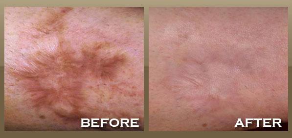 Eczema Scar Removal Dorothee Padraig South West Skin