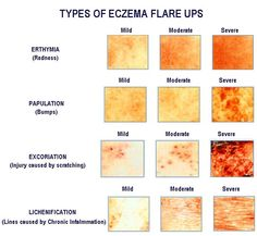 How to Know If I have Eczema