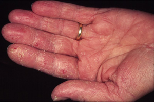 Bad Eczema on Hands