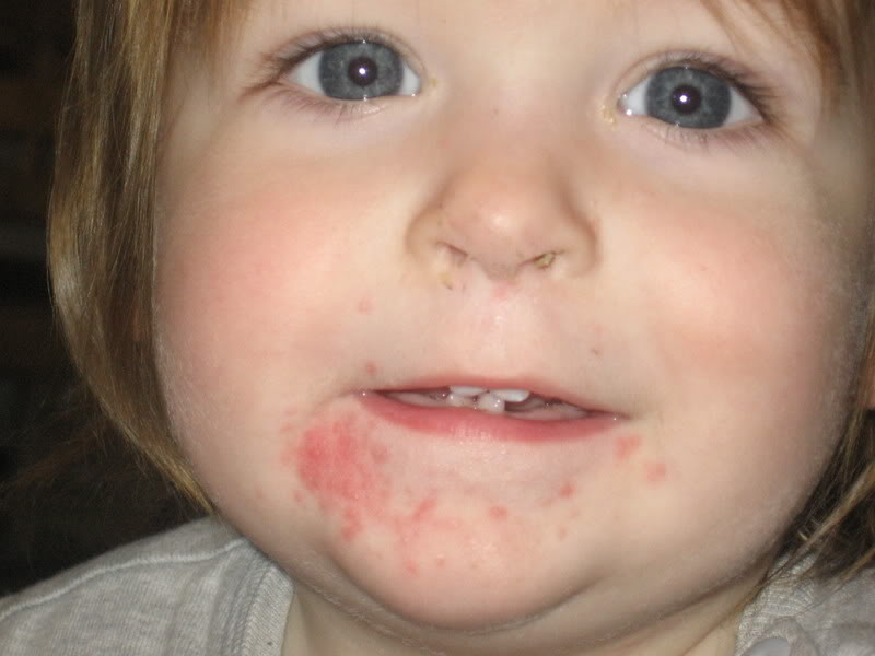 Eczema Around Mouth Toddler Dorothee Padraig South West