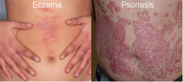 psoriasis natural treatment coconut oil