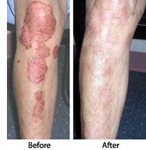Common Causes of Psoriasis