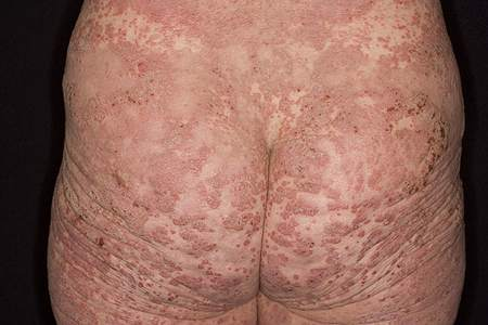 Do you have psoriasis, eczema, or another skin condition 1
