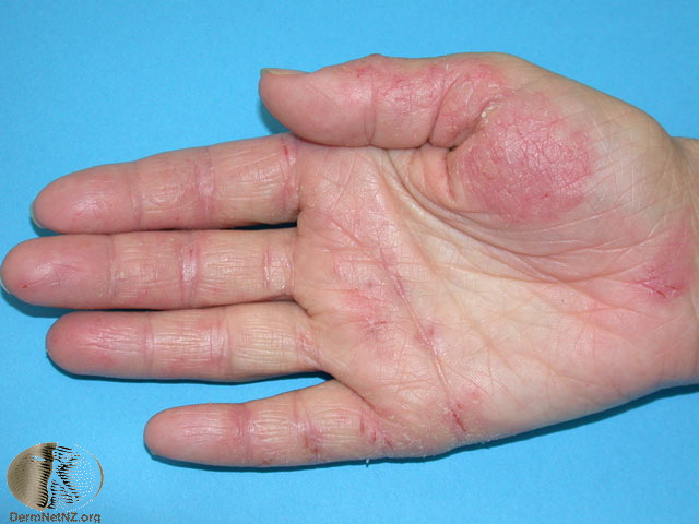 eczema on hands treatment #11