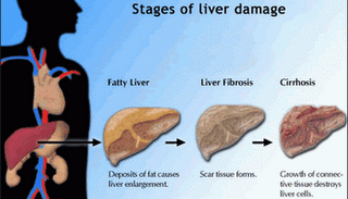 What is psoriasis of the liver