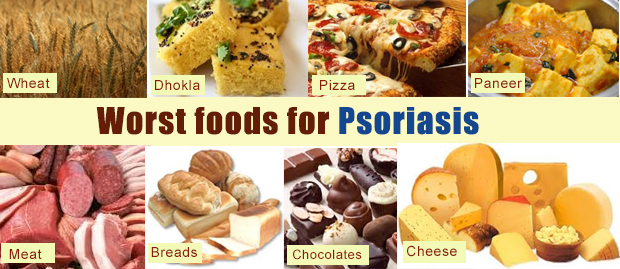 Worst foods for psoriasis dorothee padraig south west for Fish oil for psoriasis