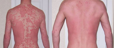 Any Way to Quick Relief For Psoriasis