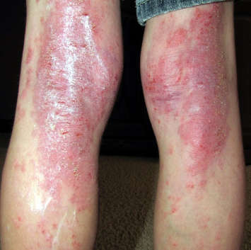 Psoriasis a disease that is common among adults, is quite rare among infants 2