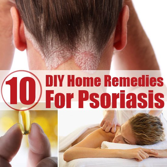 Posts about psoriasis treatment written by Health Today group 1