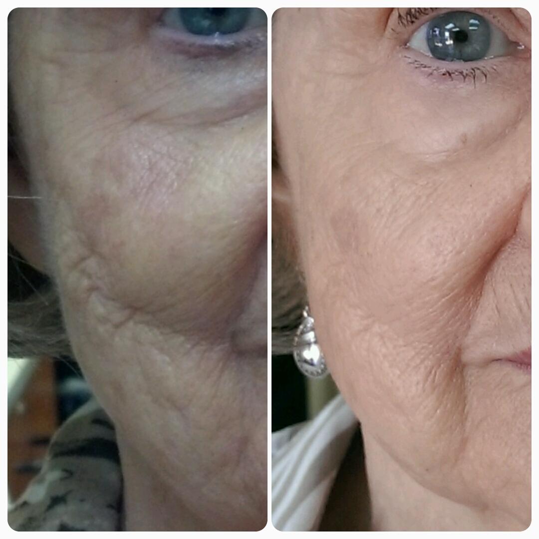 Anti Aging Wrinkles