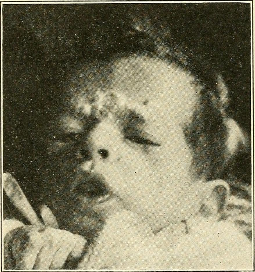 eczema treatment for children