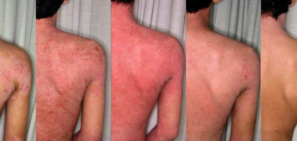 Cure for Eczema on Body