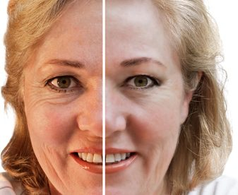 Cosmetic Procedures for Wrinkles