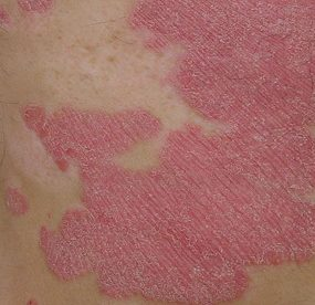 Difference Between Eczema and Dermatitis