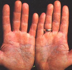 What Causes Psoriasis on Hands