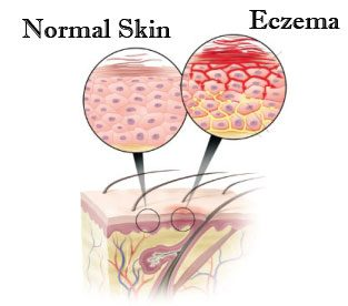Best Home Remedy for Eczema