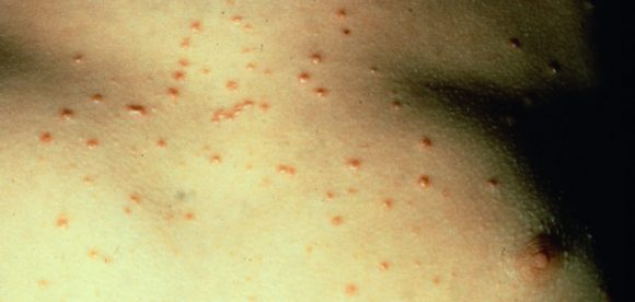 What Causes Psoriasis Breakouts