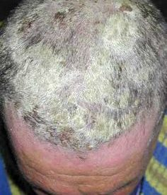 How to Treat Scalp Psoriasis
